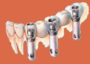 Dental Implant Bridge Procedure