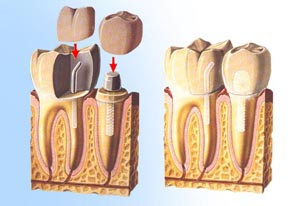 Restoring Mouth With Dental Implants