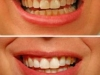23_watermark_320x240_teeth-before-after-2