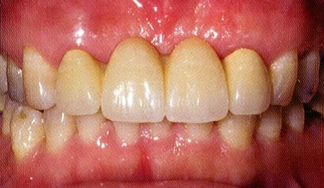 Anterior Max Bridge After