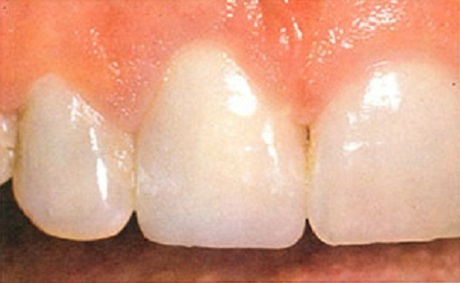 Restorative Dentistry After