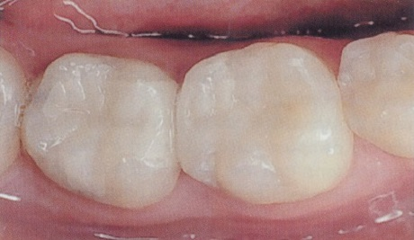Amalgam After