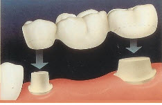 Porcelain Bridge Procedure